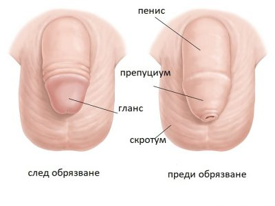 https://www.plazmamed.eu/wp-content/uploads/2021/03/AR-circumcision-diagram_wide-400x300.jpg